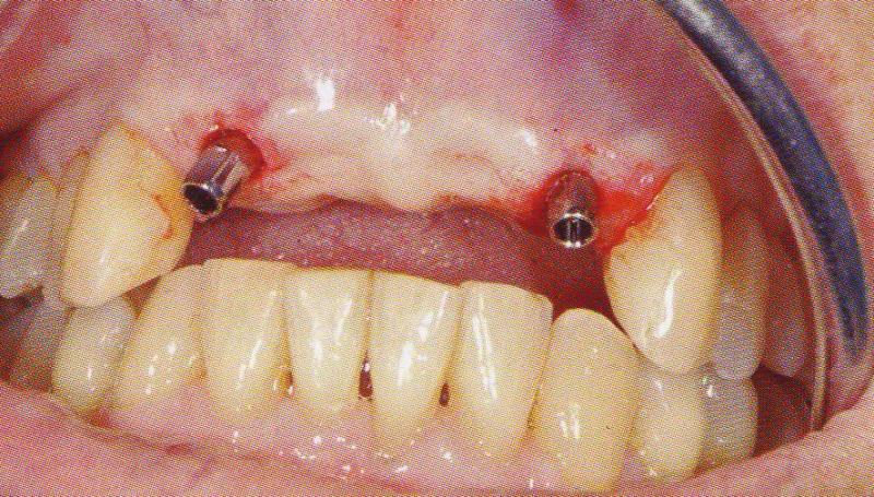 Как вживляют зуб имплантант